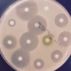 Меры против распространения генов резистентности